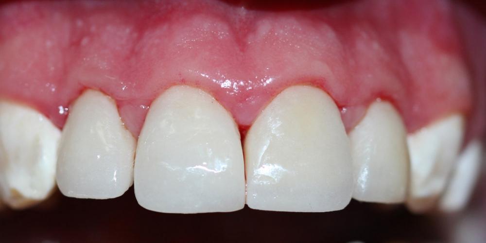 Реставрация керамическими винирами передних зубов фото после