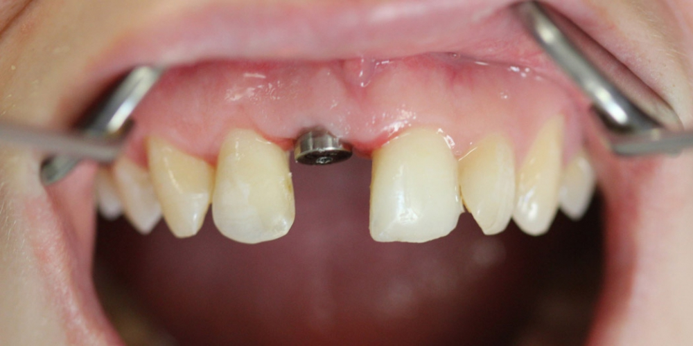 Фото после установки имплантата и формирователя десны. Восстановление переднего зуба имплантатом и коронкой