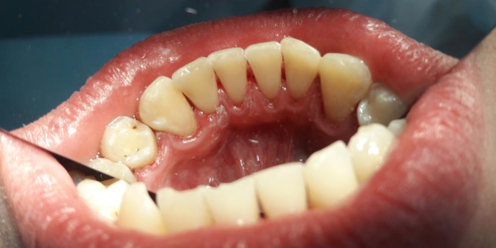 Профессиональная гигиена полости рта (снятие налета и камня)
