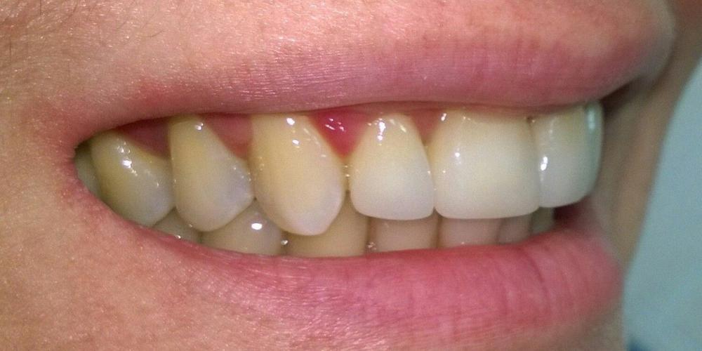 Результат Цельнокерамические коронки e-max на передние зубы