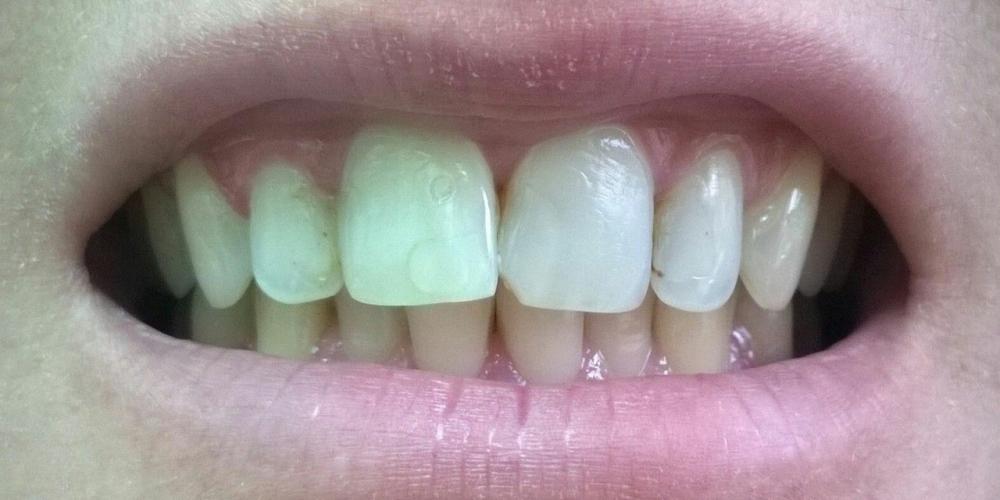 Исходная ситуация Цельнокерамические коронки e-max на передние зубы