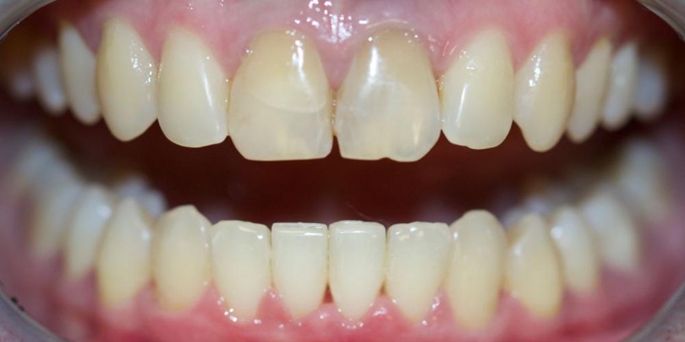 Выравнивание зубов на нижней челюсти