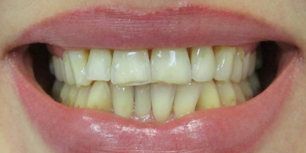 Протезирование передних зубов цельнокерамические коронки E-Max фото до