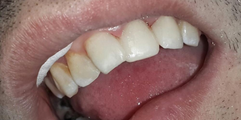 Результат восстановления передних зубов