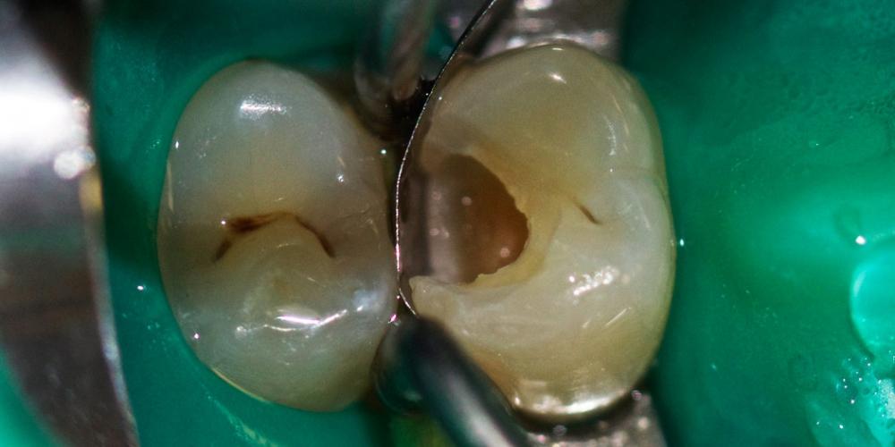 Лечение зуба под анастезией с применением коффердама