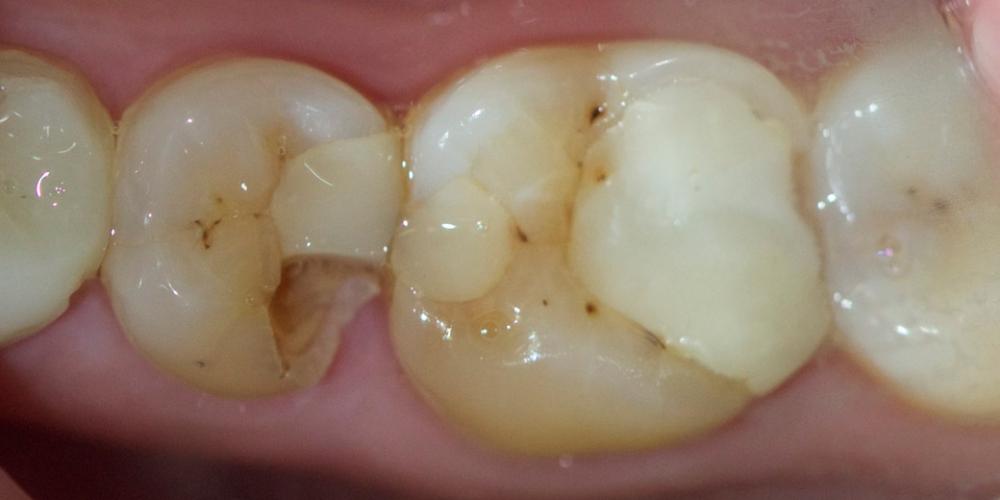 Лечение среднего кариеса на жевательном зубе нижней челюсти