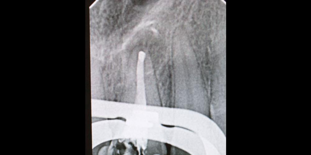 Апикальный периодонтит (киста), результат лечения