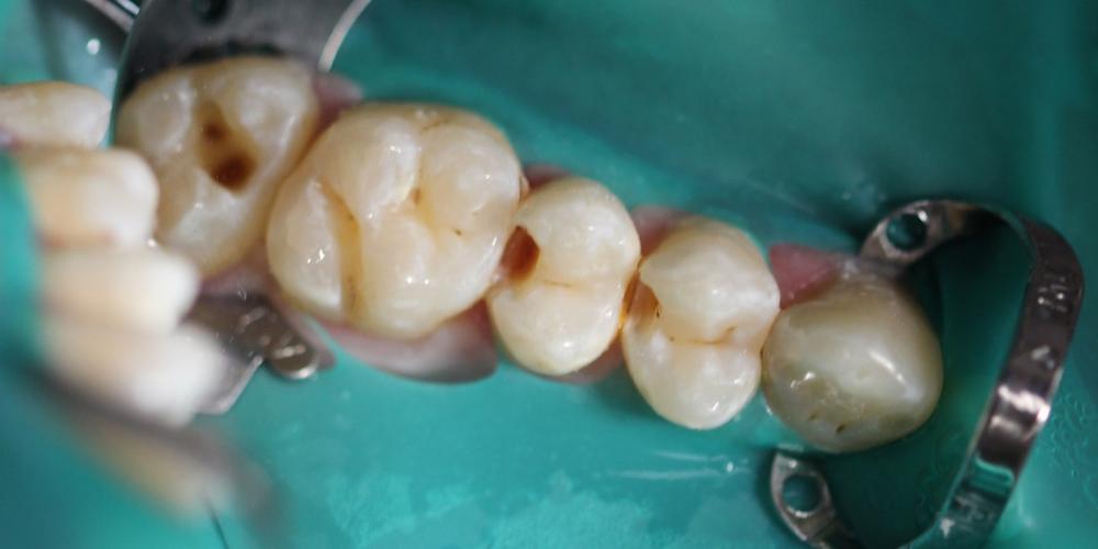 Результат лечения кариеса четырех зубов за один прием