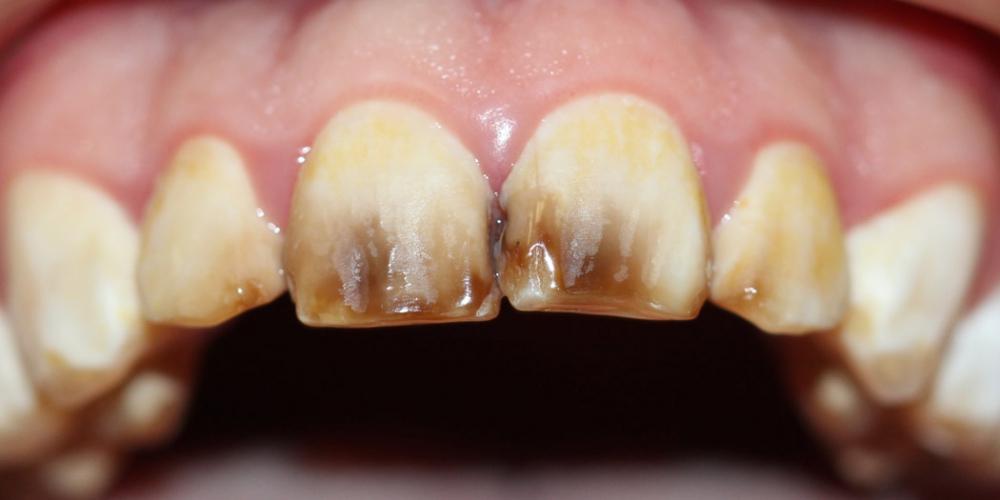Реставрация керамическими винирами передних зубов фото до
