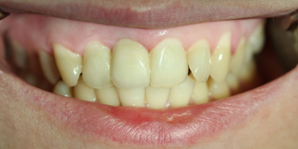 Фото после установки коронки. Восстановление переднего зуба имплантатом и коронкой