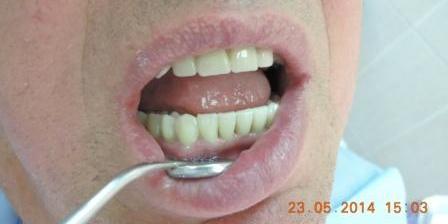Наконец, протезы были зафиксированы в полости рта. В результате эстетика и функция зубов были полностью восстановлены. Сложный случай с имплантацией и протезированием