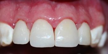 Реставрация керамическими винирами передних зубов фото после лечения