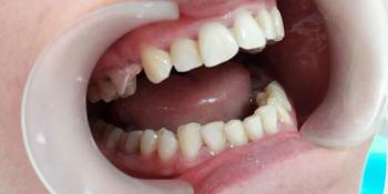 Консольный протез из металлокерамики на культевой вкладке фото до лечения