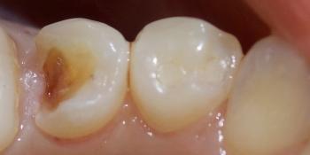 Результат лечения сколовшегося зуба фото до лечения