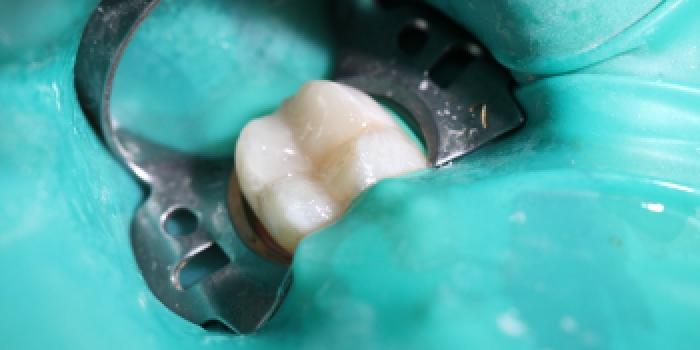 Лечение кариеса жевательного зуба фото после лечения