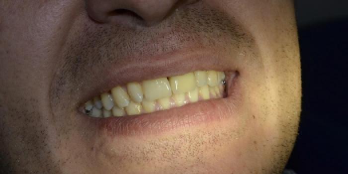 Одномоментная имплантация зубов по системе Astra-Tech с последующим протезированием фото после лечения