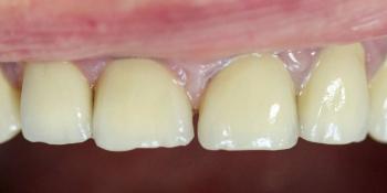 Восстановление всех зубов композитным материалом, изготовление и установка металлокерамических корон фото после лечения