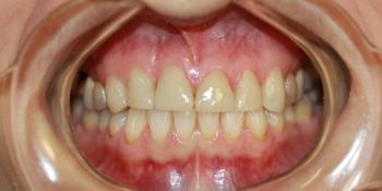 Керамические (безметалловые) виниры Е-МАХ на 6 передних зубов фото после лечения