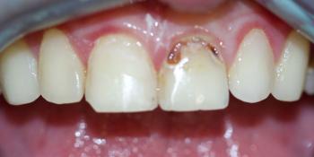 Жалоба на эстетическую неудовлетворенность передних зубов фото до лечения