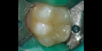 Лечение среднего кариеса на жевательном зубе + реставрация фото после лечения