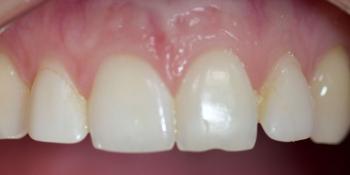 Виниры на передние зубы и реставрация резца фото до лечения