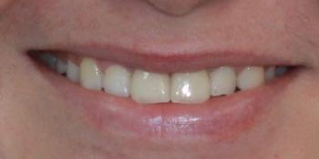 Установка двух керамических виниров на передние зубы фото после лечения