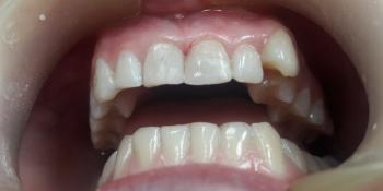 Художественная реставрация передних зубов композитным материалом фото после лечения