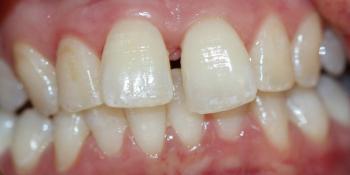 Устранение щели между зубами съемными аппаратами фото до лечения