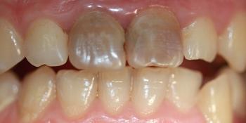 Отбеливание двух передних зубов фото до лечения