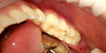 Лечение глубокого кариеса двух зубов фото после лечения