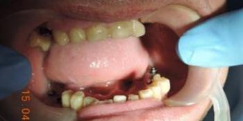 Имплантация зубов и последующее протезирование с применением диоксида циркония фото до лечения