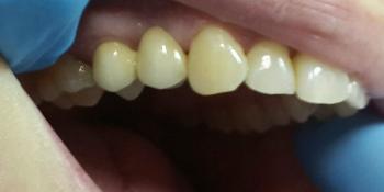 Консольный протез из металлокерамики на культевой вкладке фото после лечения