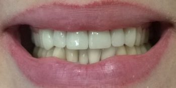 Керамические (безметалловые) коронки E-Max (6 верхних зубов) фото после лечения