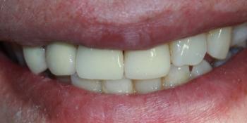 Имплантация переднего зуба и металлокерамическая коронка фото после лечения