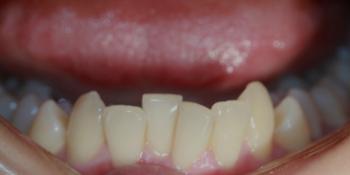 Выравнивание зубов на нижней челюсти фото до лечения