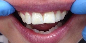 Отбеливание зубов Zoom AP с последующей реставрацией переднего зуба фото после лечения