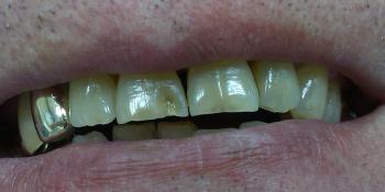 Результат реставрации скола режущего края зуба композитом фото до лечения