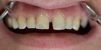 Неудовлетворенность реставрацией на переднем центральном зубе фото до лечения