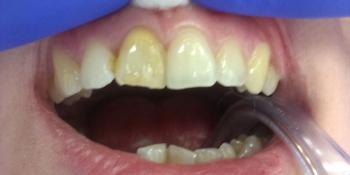 Внутриканальное отбеливание переднего зуба Opalescense Endo фото до лечения