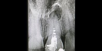 Апикальный периодонтит (киста), результат лечения фото до лечения