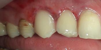 Реставрация фронтальных зубов, пораженных множественным кариесом фото после лечения