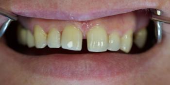 Неудовлетворенность реставрацией на переднем центральном зубе фото после лечения