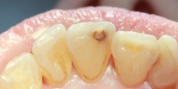 Лечение кариеса переднего зуба (центральный резец) фото до лечения