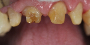 Безметалловая керамика E-max на передние зубы фото до лечения