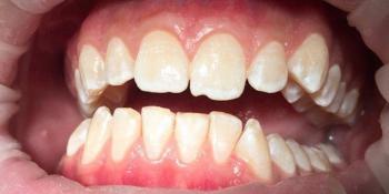 Профессиональная гигиена всей полости рта с последующей полировкой и реминерализацией фото после лечения