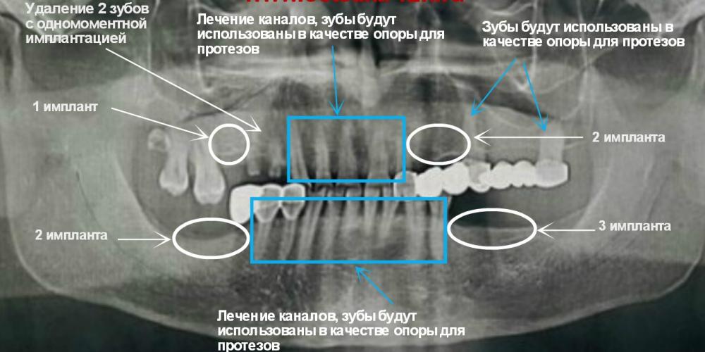 Был составлен план лечения, целью которого являлось восстановление отсутствующих зубов, восстановление естественной  высоты прикуса  за счет установки имплантов и покрытия зубов коронками.   Снятие старых коронок; Удаление корней зубов, которые не могут быть восстановлены или использованы в качестве опоры для протезов; Восстановление отсутствующих зубов посредством имплантации с применением системы Astra-Tech; Эндодонтическое лечение зубов; Покрытие собственных зубов и имплантов коронками из циркония. Сложный случай с имплантацией и протезированием