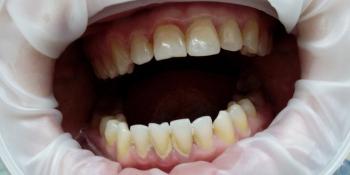 Результат снятия зубного камня ультразвуком фото до лечения