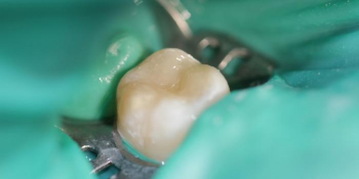 Лечение кариеса зуба фото после лечения