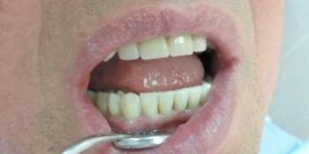 Сложный случай с имплантацией и протезированием фото после лечения