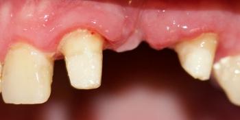 Мостовидный металлокерамический протез на передние зубы фото до лечения